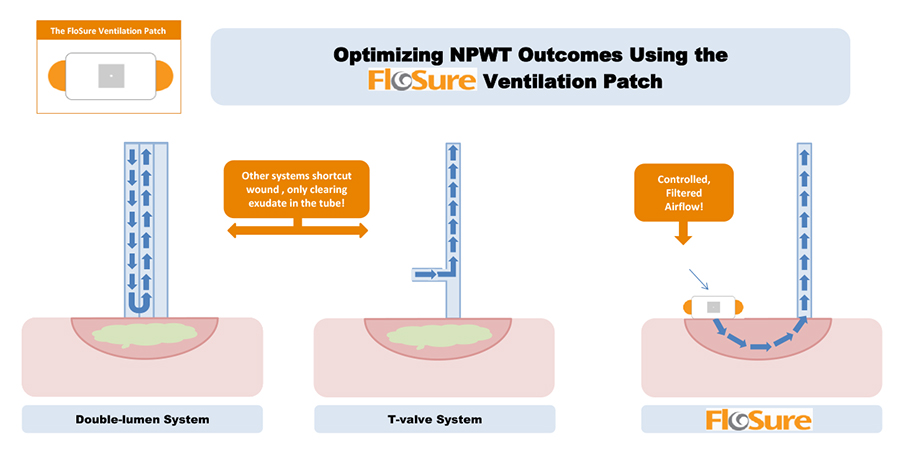 optimizing-npwt-outcomes-using-the-flosure-ventilation-patch